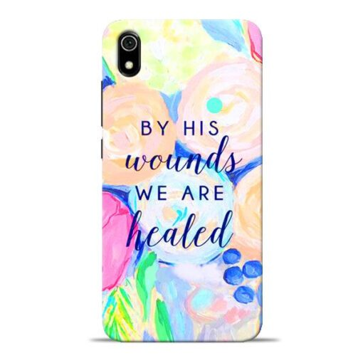 We Healed Redmi 7A Mobile Cover